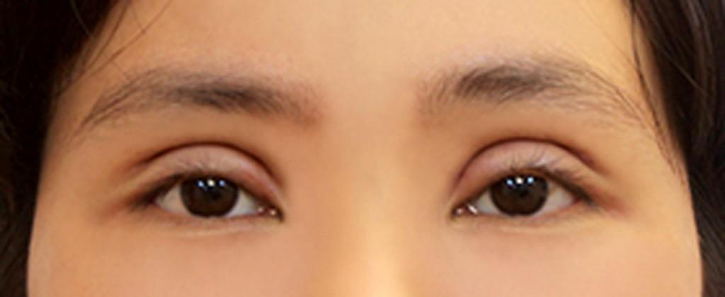 Mắt có thể bị sưng nhẹ sau khi bấm mí