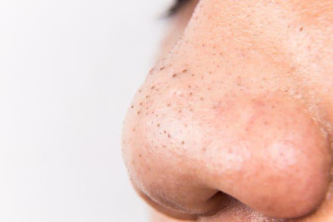 Mụn đầu đen xuất hiện nhiều ở vùng mũi