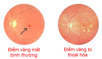 thoai-hoa-diem-vang-1